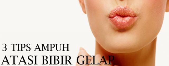 3 Tips Ampuh Atasi Bibir Gelap